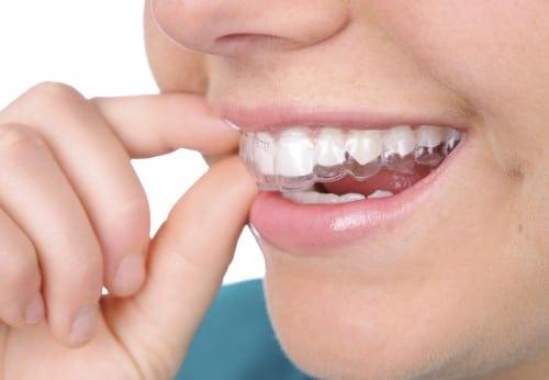 Cho những ai đang có ý định niềng răng !!!