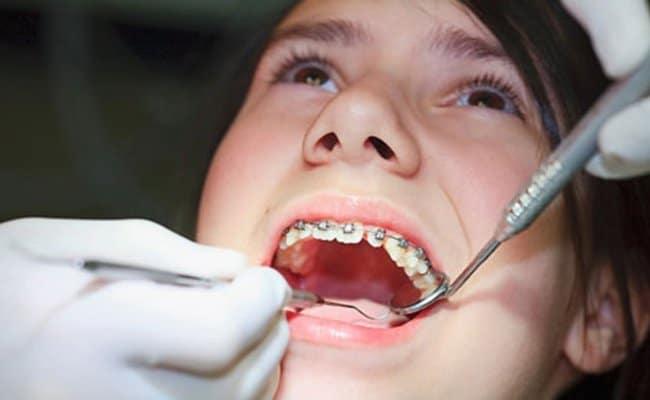 Niềng răng đau không, làm sao để niềng răng không đau?