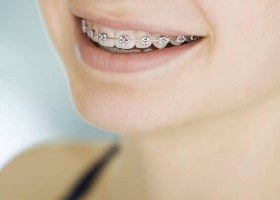 Niềng răng giá rẻ nhất hiện nay giá bao nhiêu?v