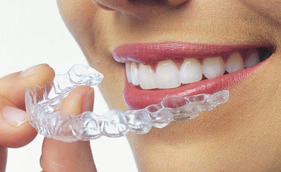Niềng răng hô hàm trên và một số điều cần biết