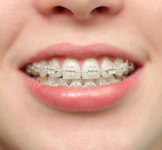 Niềng răng khểnh như thế nào, có bị đau không?