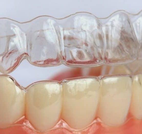 Vì sao niềng răng không mắc cài giá đắt hơn các loại niềng răng khác?