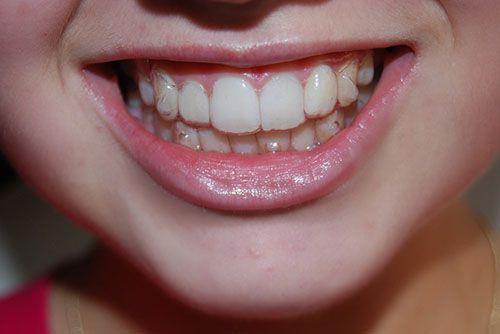 Niềng răng không mắc cài giá bao nhiêu?