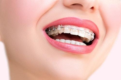 Những trường hợp có thể áp dụng cách niềng răng không nhổ răng
