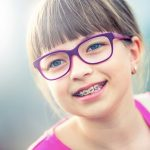 Niềng răng mất bao lâu thì không cần niềng nữa?