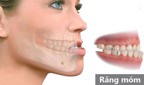 Niềng răng móm như thế nào, bao lâu hiệu quả?