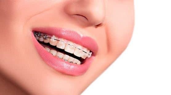 Niềng răng ở đâu tốt giá rẻ chuyên nghiệp?