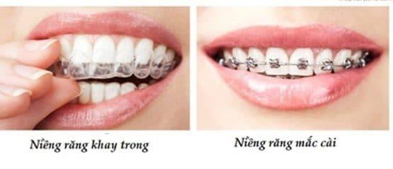 Niềng răng thẩm mỹ giá bao nhiêu?