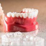 Những điều cần biết về niềng răng tháo lắp