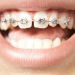 Những điều cần biết khi muốn niềng răng thưa