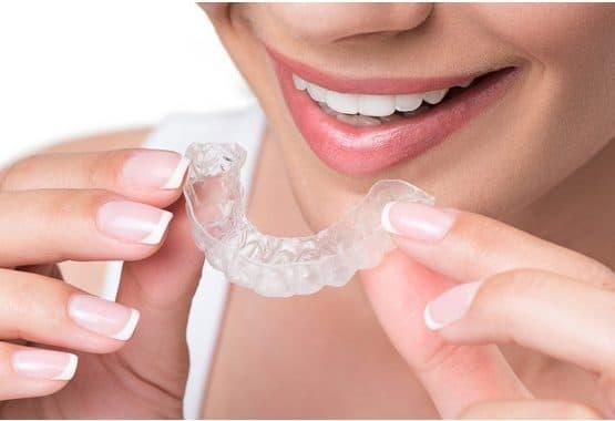 Niềng răng trả góp 0%  tại tphcm không lo về giá cả!!!