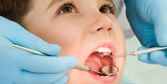 Răng sâu và những vấn đề bạn cần hiểu rõ hơn ai hết