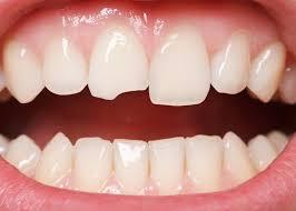 Hiện nay trám răng sứ bao nhiêu tiền là đủ?