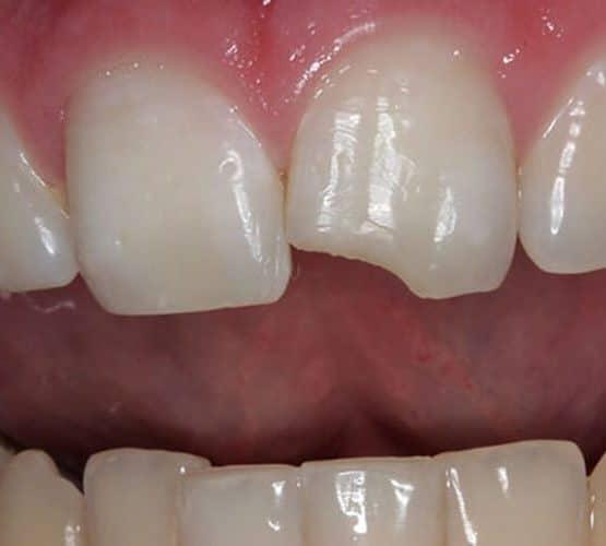 """Những điều cần biết về trám răng thẩm mỹ """"hội trám răng' cần biết"""