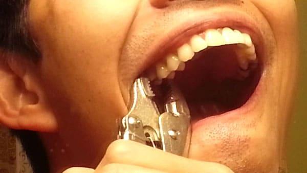 Cách nhổ răng không đau tại Nha Khoa Sài Gòn bác sĩ Quang