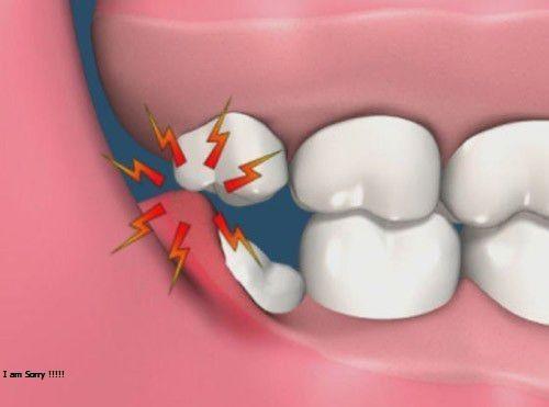 Chi phí nhổ răng khôn hiện nay bao nhiêu?