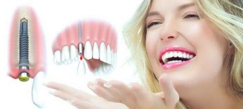 Chi phí trồng răng implant hiện nay bao nhiêu thưa Nha Khoa Sài Gòn bs Quang?