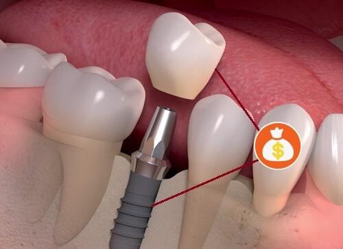 Chi phí trồng răng thực tế vì sao cao hơn bảng giá dịch vụ?