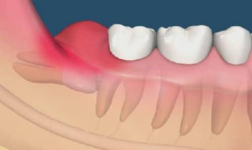 Thực hư chuyện có nên nhổ răng khôn không?