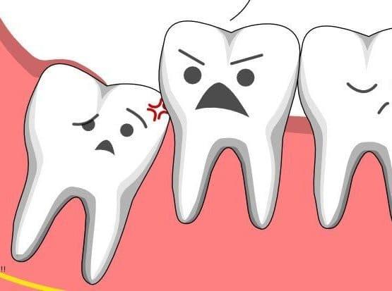 Có nên nhổ răng số 8 không khi quá đau nhức, khó chịu?
