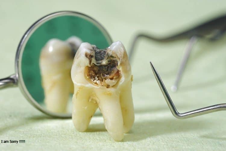 Nhổ răng cấm có nguy hiểm như nhiều người vẫn nghĩ??