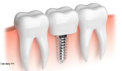 3 điều thắc mắc về việc nhổ răng hàm ai cũng cần biết