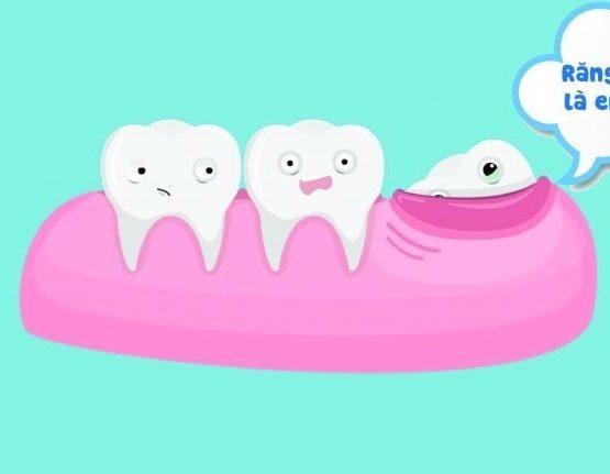 Những yếu tố quyết định đến việc nhổ răng khôn bao nhiêu tiền