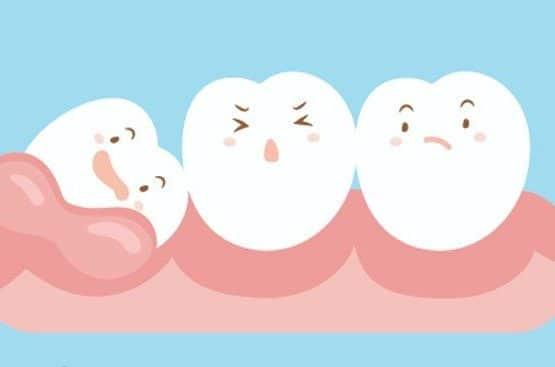 Vì sao nhổ răng khôn giá cao hơn nhổ răng khác?