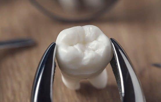 Nhổ răng khôn hàm dưới: Nên hay không nên?