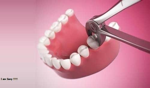 Nhổ răng số 6 có ảnh hưởng đến chức năng nhai, làm sao khắc phục?