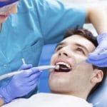 3 vấn đề khi nhổ răng số 8 hàm trên được nhiều người thắc mắc nhất