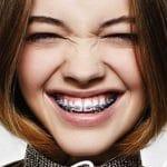 Giải đáp thắc mắc niềng răng bao lâu thì có kết quả?