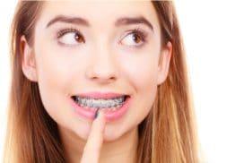 Niềng răng có đau không – Cùng bác sĩ giải đáp?