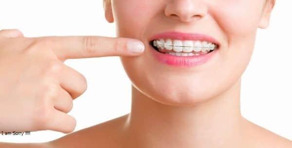 Niềng răng giá bao nhiêu tiền hiện nay vậy?