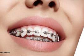 Niềng răng mắc cài kim loại có ưu nhược điểm như thế nào?