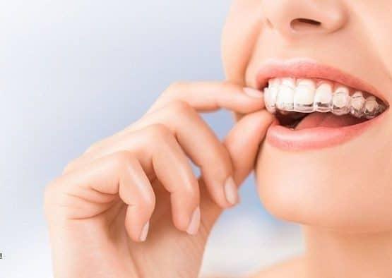 Niềng răng trong suốt giá bao nhiêu, trường hợp nặng có niềng được không?