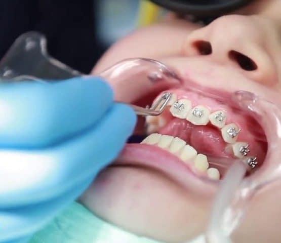 Qúa trình niềng răng như thế nào, có đau không?