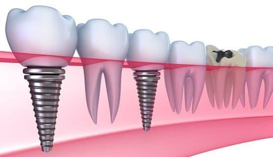 Nên trồng răng hàm bằng phương pháp nào hiện nay?