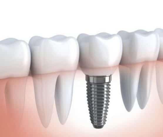 Chuyên gia tư vấn trồng răng sứ bao nhiêu tiền?