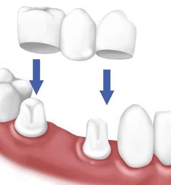 Trồng răng sứ vĩnh viễn giá bao nhiêu?