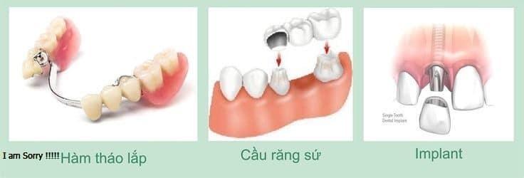 Các phương pháp trồng răng phù hợp với từng đối tượng?