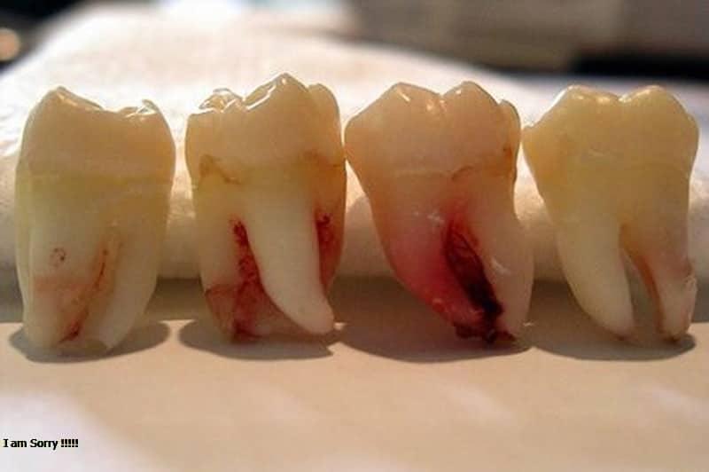 Có nên nhổ răng số 8 không