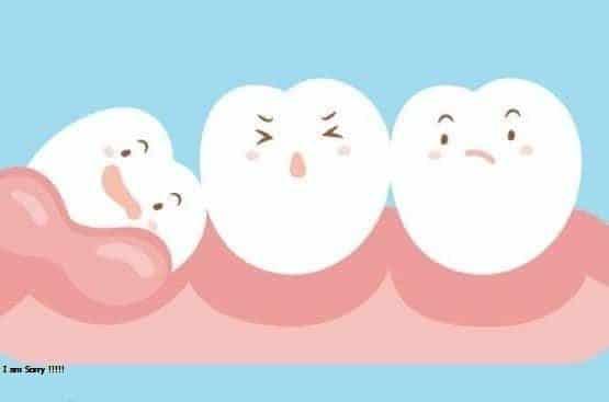 Giá nhổ răng hiện nay được tính bao nhiêu tiền 1 chiếc?