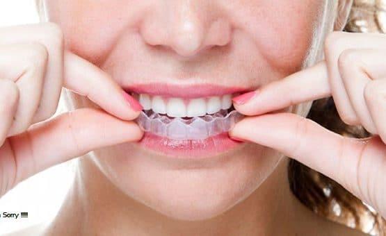 Giá niềng răng trong suốt có đắt không, có những mặt hạn chế nào ạ?