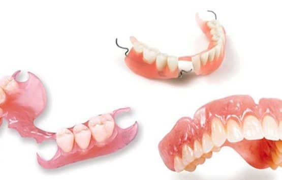 Giá trồng răng hàm cho 1 răng khoảng bao nhiêu?