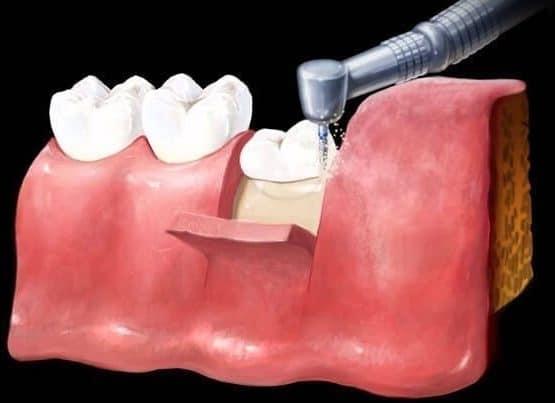 Nên nhổ răng khôn ở đâu giá rẻ, không đau và nhanh lành?