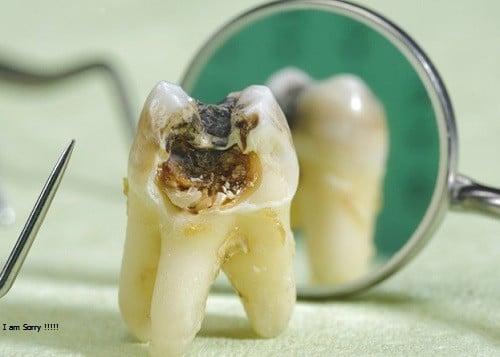 Nhổ răng bao nhiêu tiền một cái khi răng bị hư, sâu?