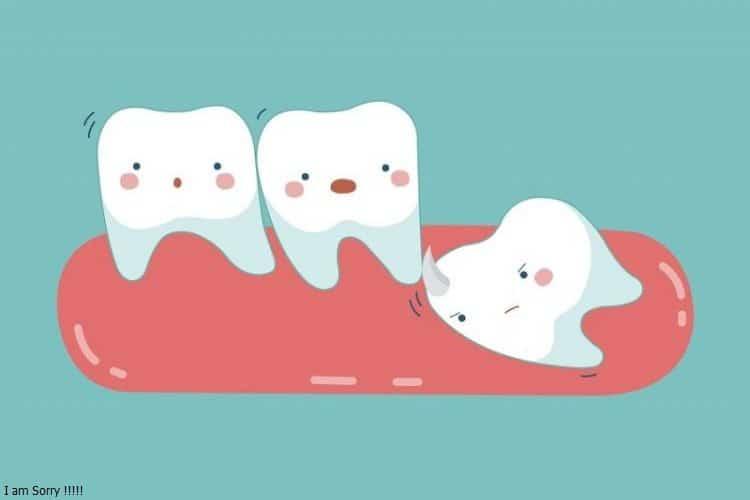 Kinh nghiệm trước, trong và sau khi nhổ răng khôn mọc lệch