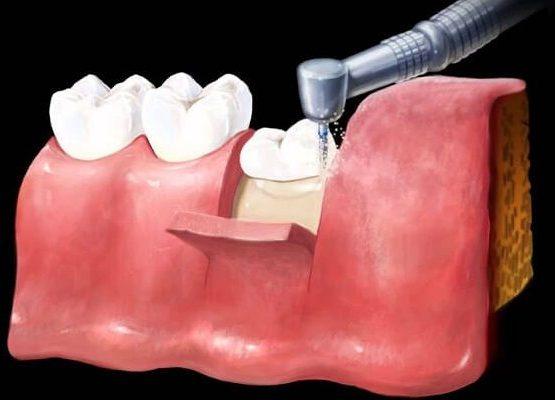 """Kỹ thuật nhổ răng không đau, nhẹ nhàng như """"trở bàn tay"""""""