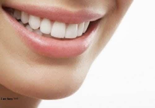 Niềng răng bao nhiêu hiện nay, làm sao chọn được địa chỉ uy tín?